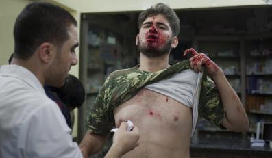 Ofiary wojny w Syrii