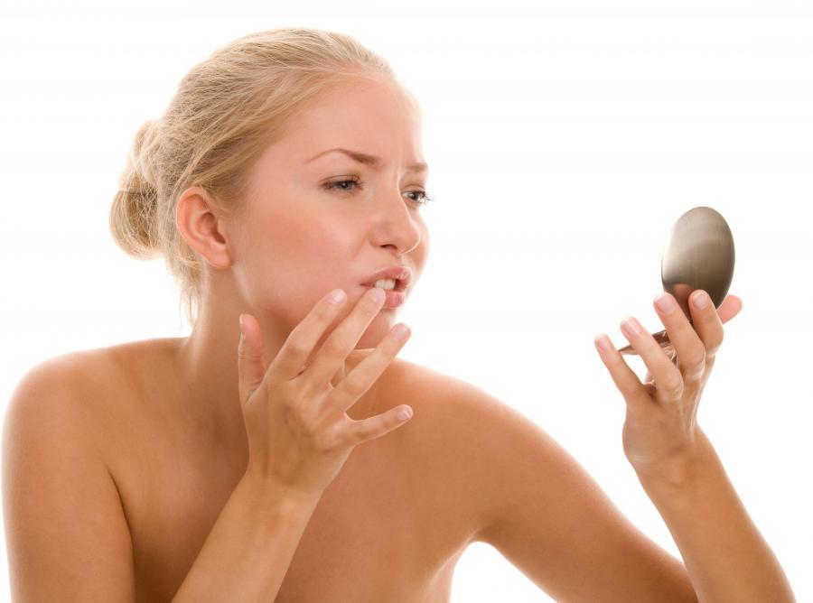 1. Pękające kąciki ust
