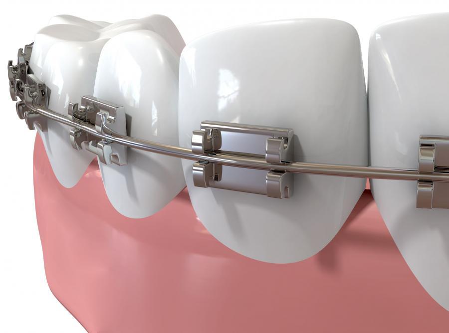 : Czy przed leczeniem ortodontycznym trzeba usunąć zatrzymane ósemki?
