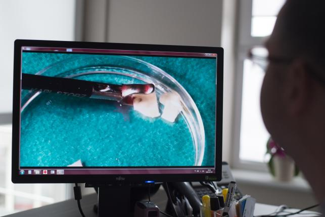 Kierownik projektu dr n. med. Paweł Radwan opowiada o nowatorskim, pierwszym w Polsce zabiegu przeszczepu tkanki jajników